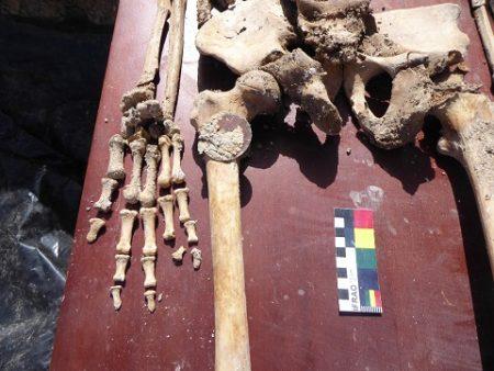 Restos humanos recuperados de una de las fosas de Benamahoma.